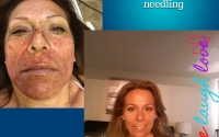 microneedling-two-weeks-later