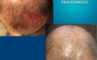 prp-2-before-after