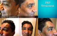 Before and after PRP Treatment