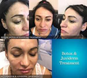 Botox and Juviderm before and after