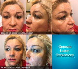 Genesis Laser Treatment before and after