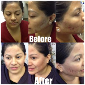 Before and After Microneedling